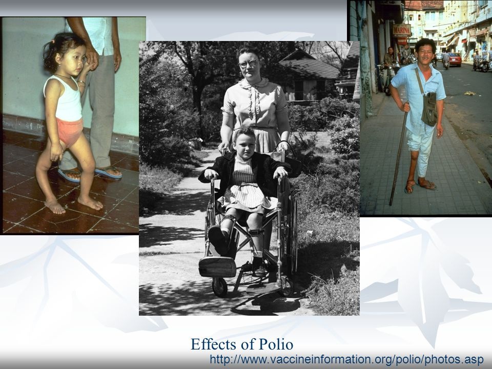 Effects of Polio http://www.vaccineinformation.org/polio/photos.asp