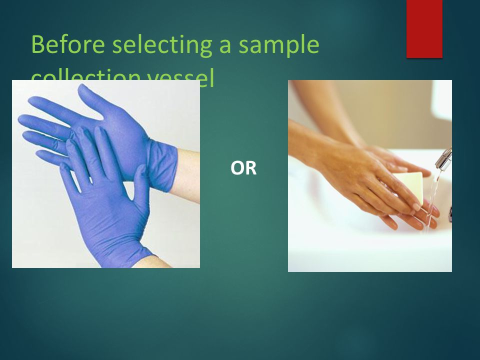 Before selecting a sample collection vessel OR