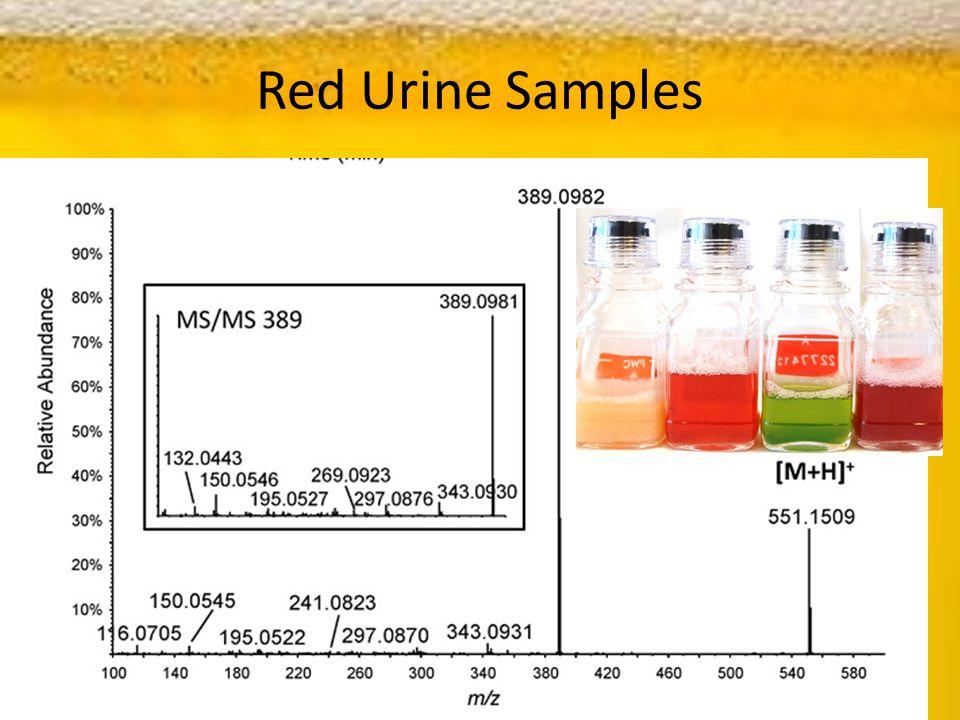 Red Urine Samples