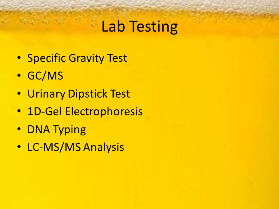 Lab Testing Specific Gravity Test GC/MS Urinary Dipstick Test 1D-Gel Electrophoresis DNA Typing LC-MS/MS Analysis