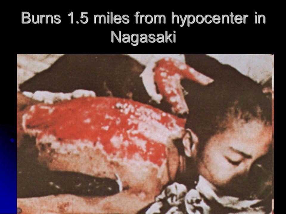 Burns 1.5 miles from hypocenter in Nagasaki