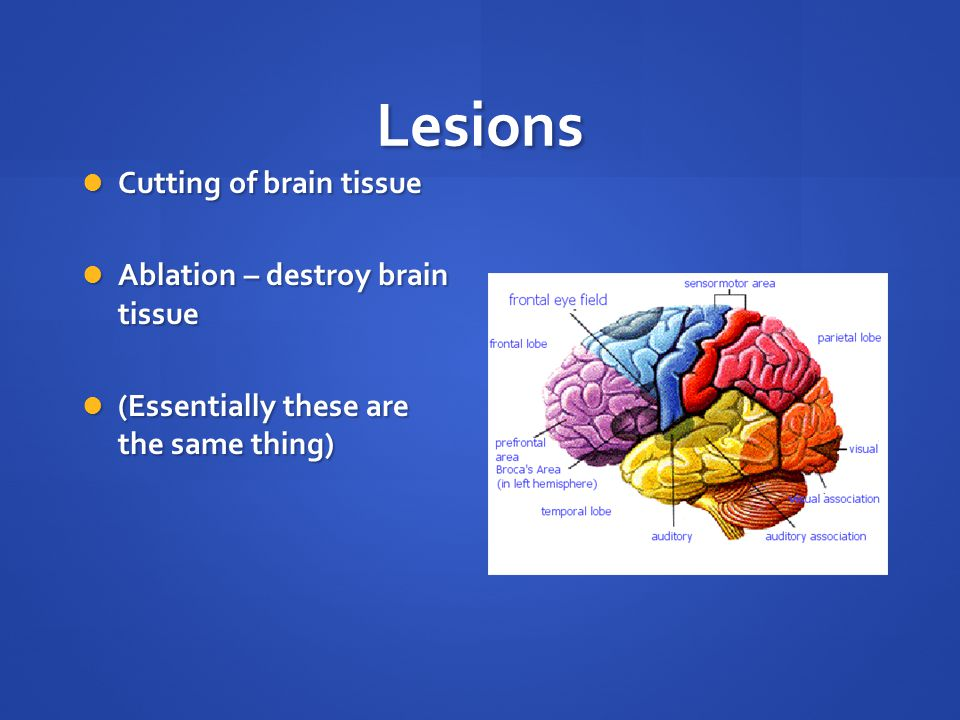 Lesions Cutting of brain tissue Cutting of brain tissue Ablation – destroy brain tissue Ablation – destroy brain tissue (Essentially these are the same thing) (Essentially these are the same thing)