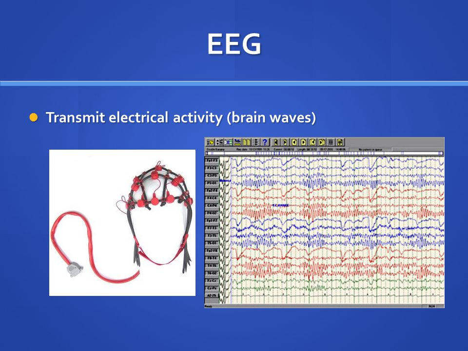 EEG Transmit electrical activity (brain waves) Transmit electrical activity (brain waves)