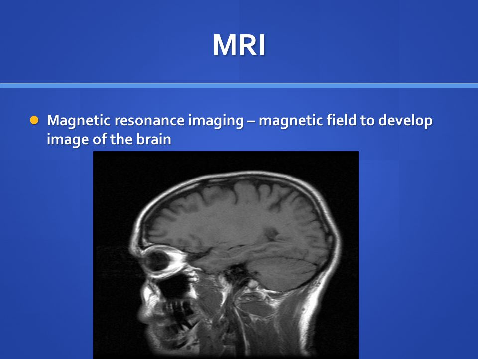 MRI Magnetic resonance imaging – magnetic field to develop image of the brain Magnetic resonance imaging – magnetic field to develop image of the brai