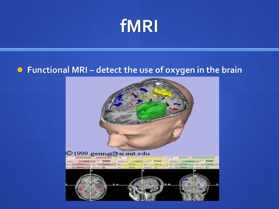 fMRI Functional MRI – detect the use of oxygen in the brain Functional MRI – detect the use of oxygen in the brain