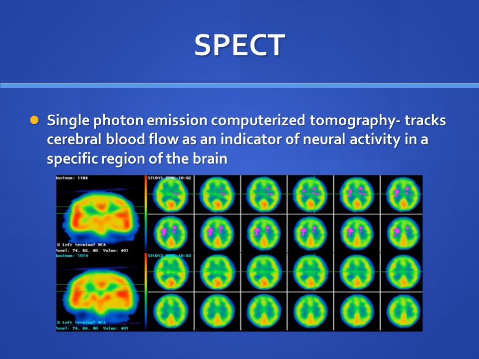 SPECT Single photon emission computerized tomography- tracks cerebral blood flow as an indicator of neural activity in a specific region of the brain Single photon emission computerized tomography- tracks cerebral blood flow as an indicator of neural activity in a specific region of the brain