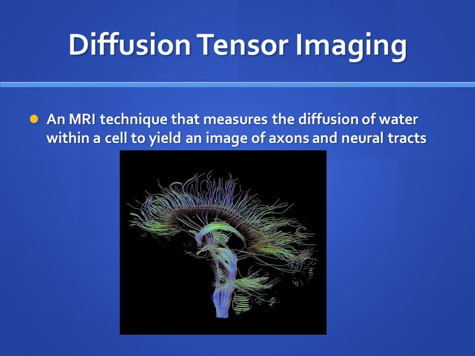 Diffusion Tensor Imaging An MRI technique that measures the diffusion of water within a cell to yield an image of axons and neural tracts An MRI technique that measures the diffusion of water within a cell to yield an image of axons and neural tracts