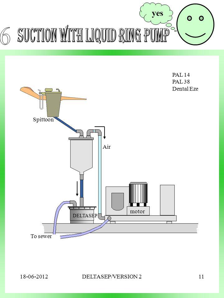 DELTASEP Spittoon To sewer motor Air PAL 14 PAL 38 Dental Eze yes 18-06-201211DELTASEP/VERSION 2