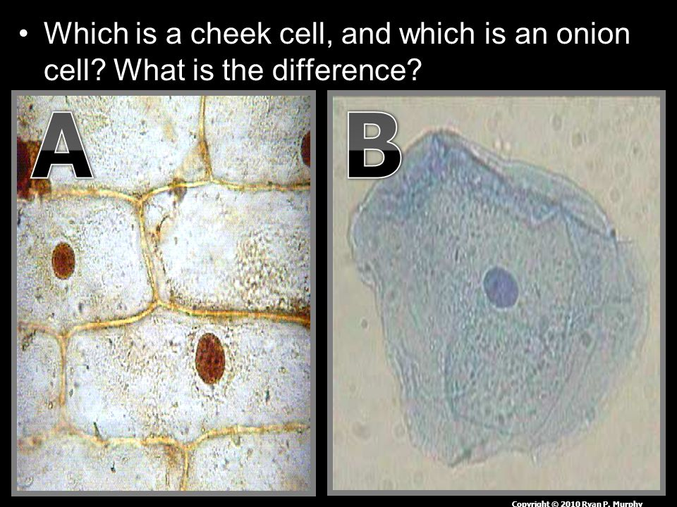 Which is a cheek cell, and which is an onion cell? What is the difference? Copyright © 2010 Ryan P. Murphy