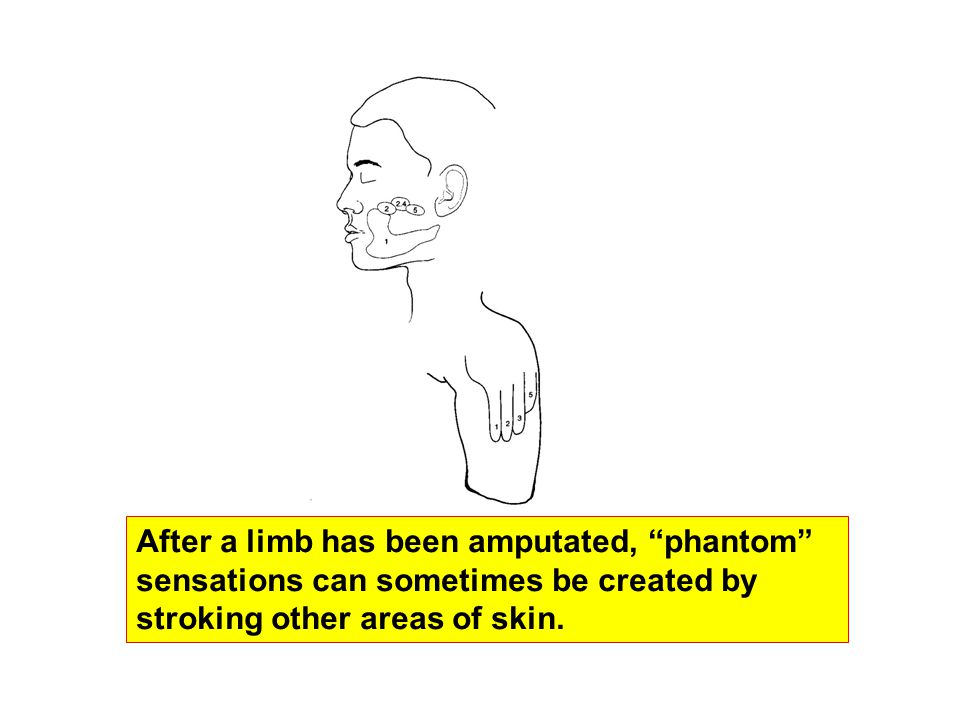 After a limb has been amputated, phantom sensations can sometimes be created by stroking other areas of skin.