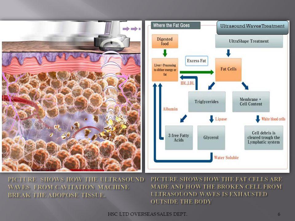HSC LTD OVERSEAS SALES DEPT.6 Ultrasound Waves Treatment