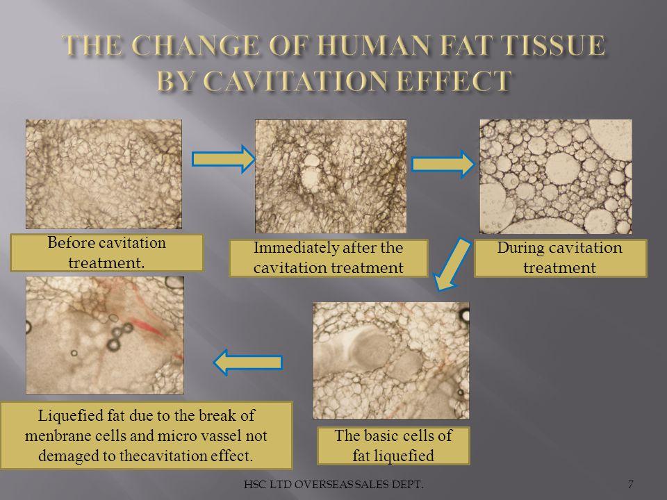 HSC LTD OVERSEAS SALES DEPT.7 Before cavitation treatment. Immediately after the cavitation treatment During cavitation treatment The basic cells of f