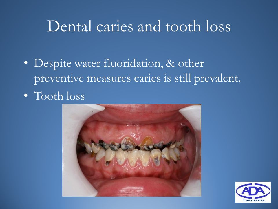 Dental caries and tooth loss Despite water fluoridation, & other preventive measures caries is still prevalent. Tooth loss