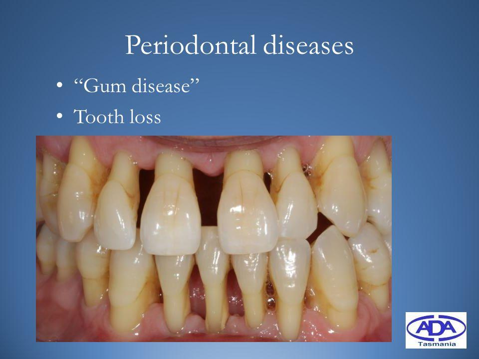 Periodontal diseases Gum disease Tooth loss