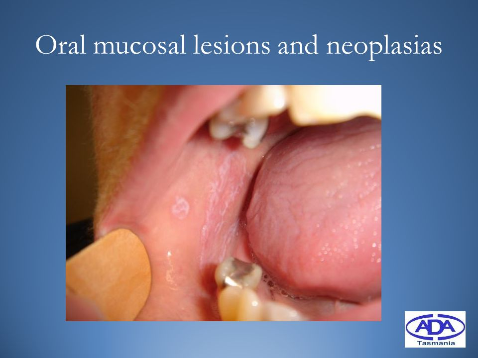Oral mucosal lesions and neoplasias