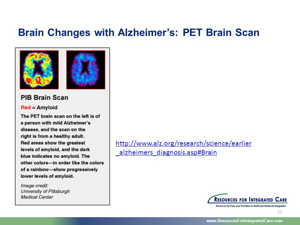 www.ResourcesForIntegratedCare.com 25 http://www.alz.org/research/science/earlier _alzheimers_diagnosis.asp#Brain Brain Changes with Alzheimer's: PET