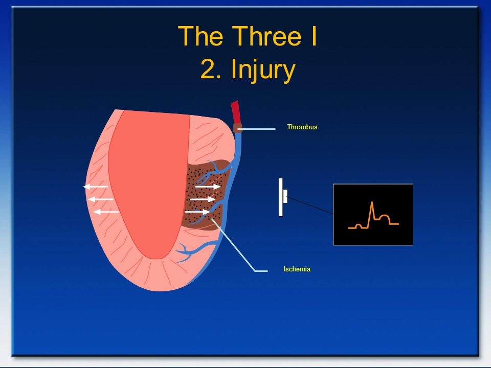 Thrombus Ischemia The Three I 2. Injury