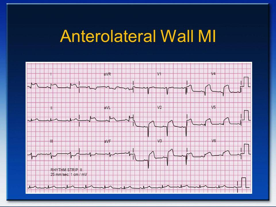 Anterolateral Wall MI