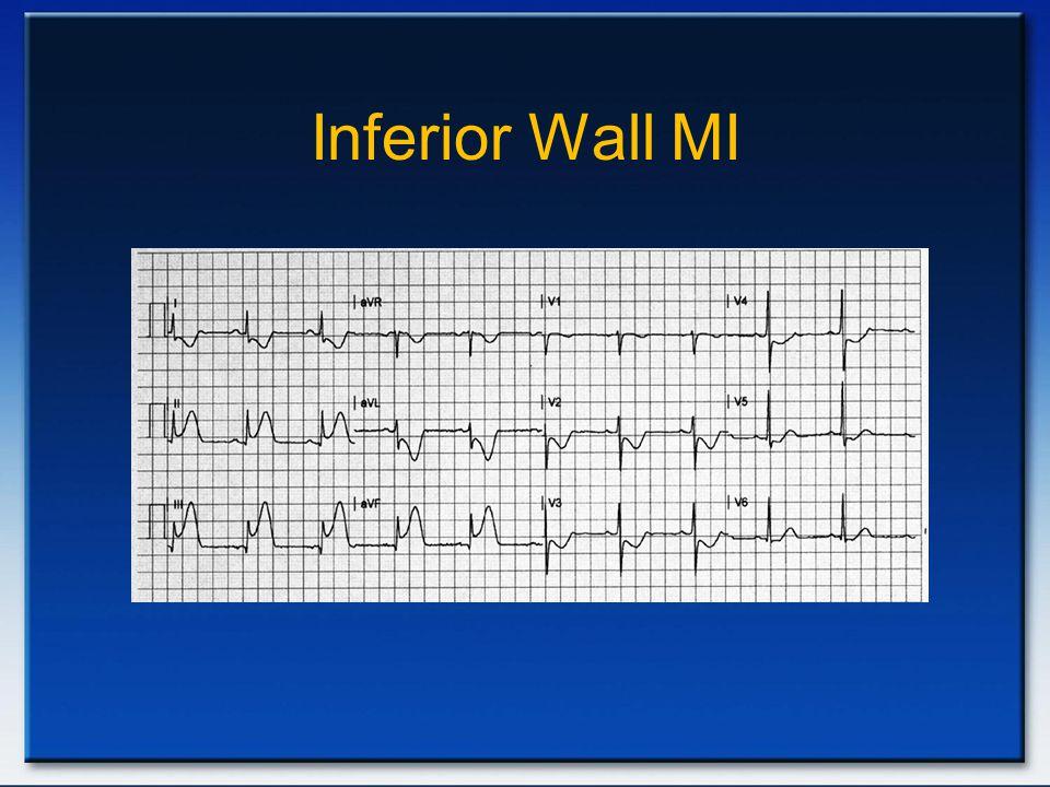 Inferior Wall MI