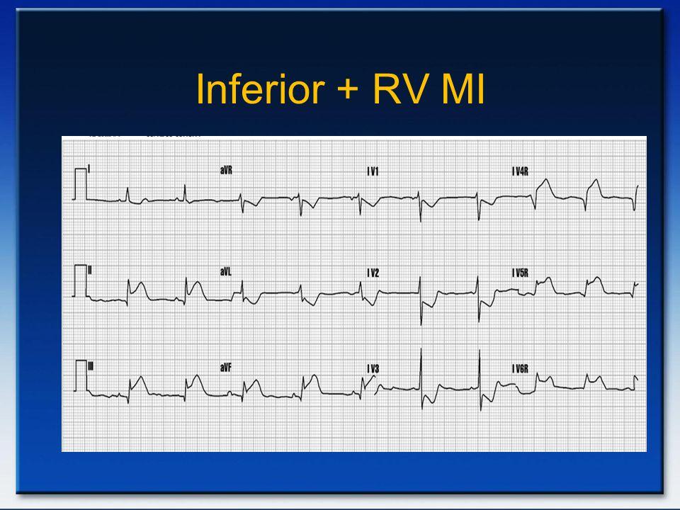 Inferior + RV MI