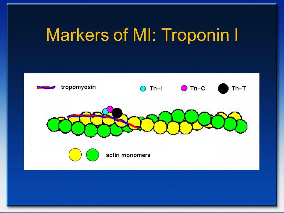 Markers of MI: Troponin I