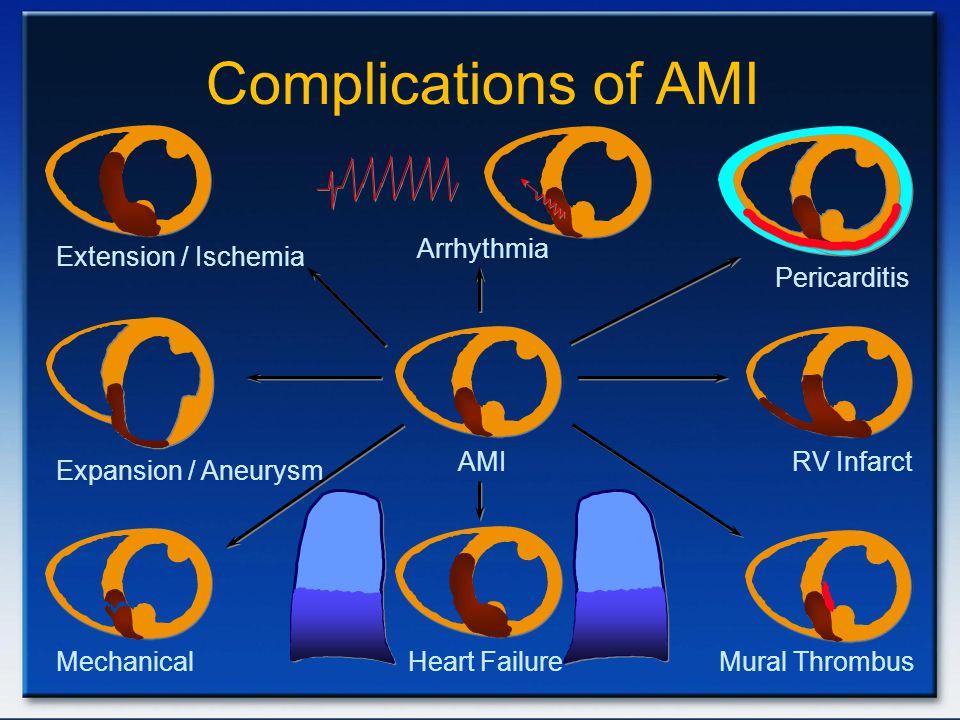 Extension / Ischemia Complications of AMI AMI Arrhythmia Heart Failure Expansion / Aneurysm RV Infarct Pericarditis Mechanical Mural Thrombus