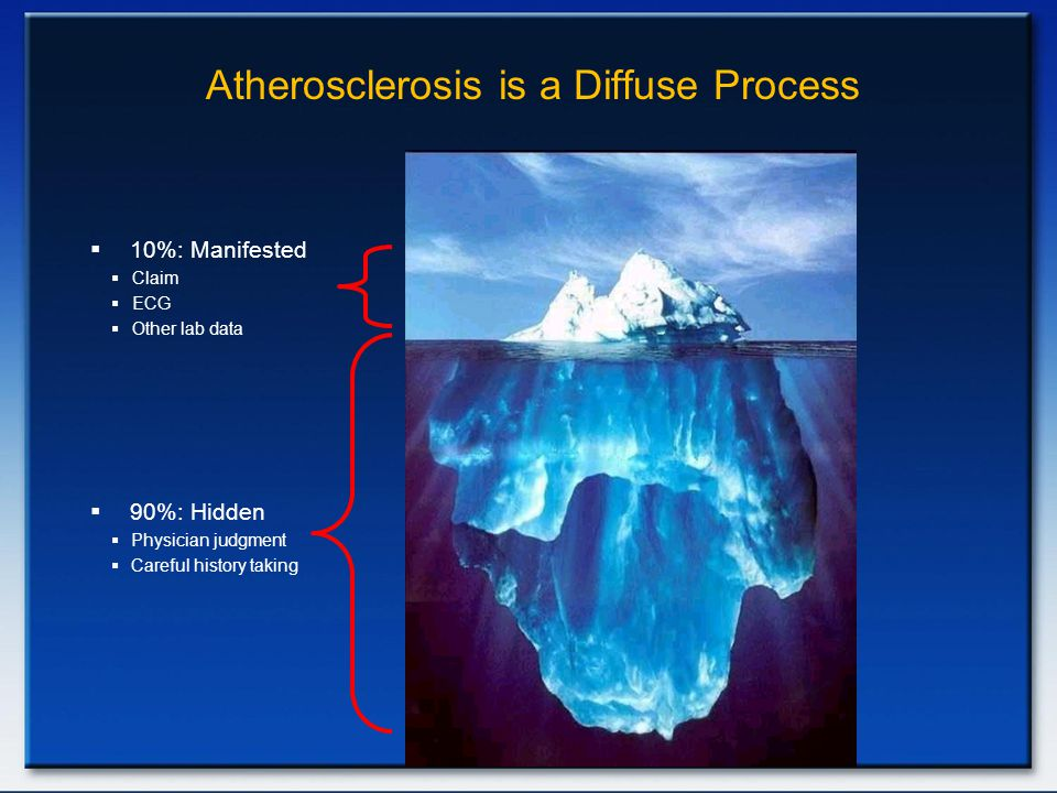 Atherosclerosis is a Diffuse Process  10%: Manifested  Claim  ECG  Other lab data  90%: Hidden  Physician judgment  Careful history taking