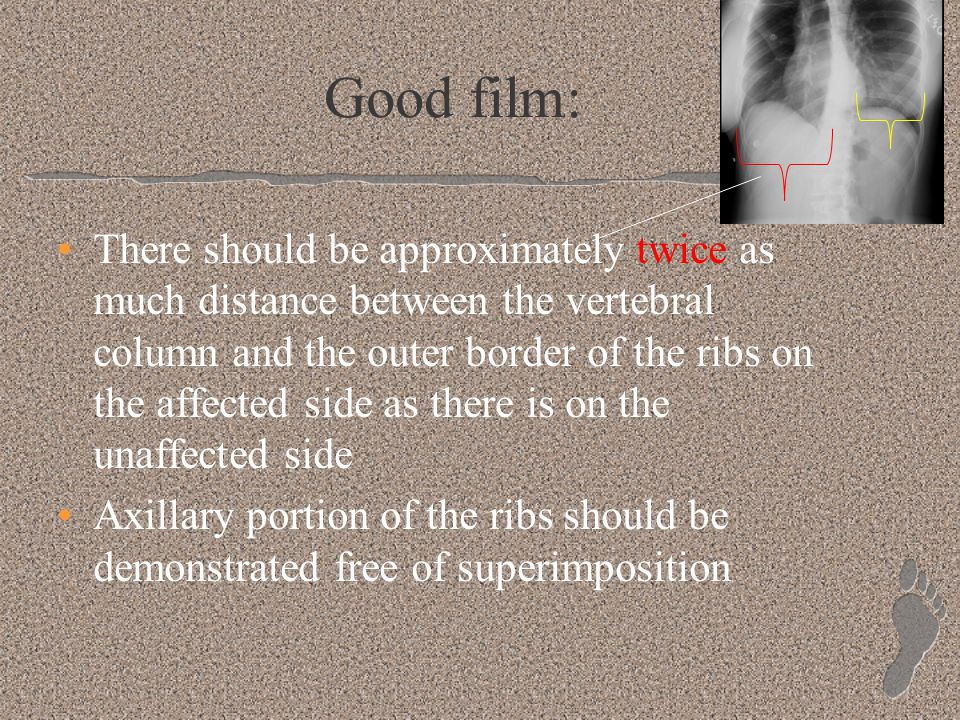 Good film: There should be approximately twice as much distance between the vertebral column and the outer border of the ribs on the affected side as