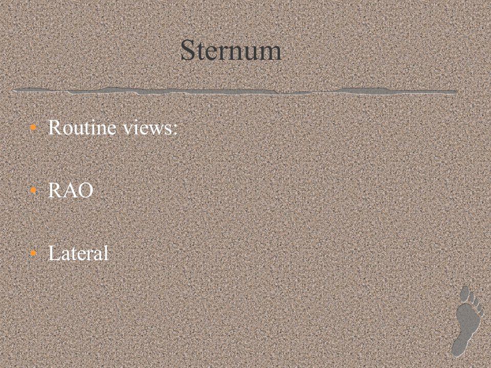 Sternum Routine views: RAO Lateral