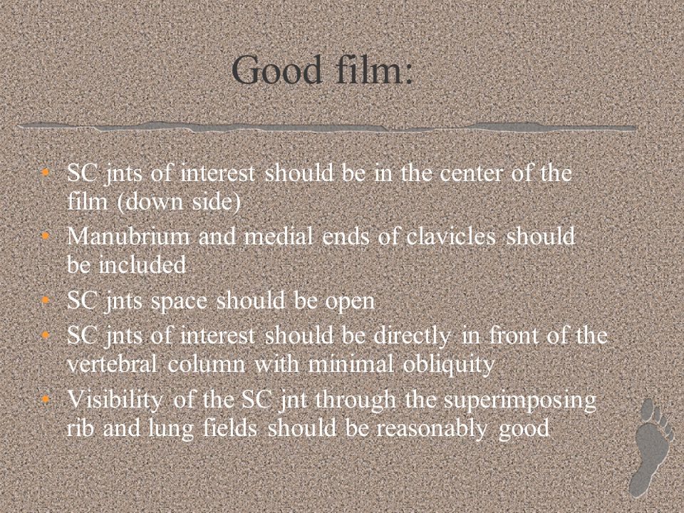 Good film: SC jnts of interest should be in the center of the film (down side) Manubrium and medial ends of clavicles should be included SC jnts space