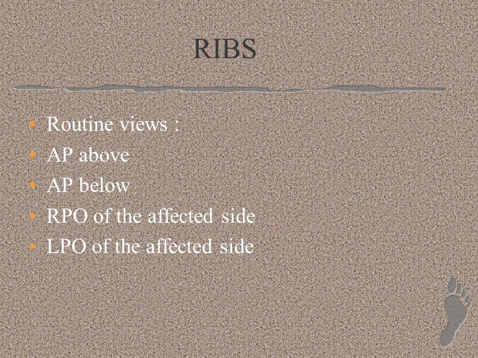 RIBS Routine views : AP above AP below RPO of the affected side LPO of the affected side
