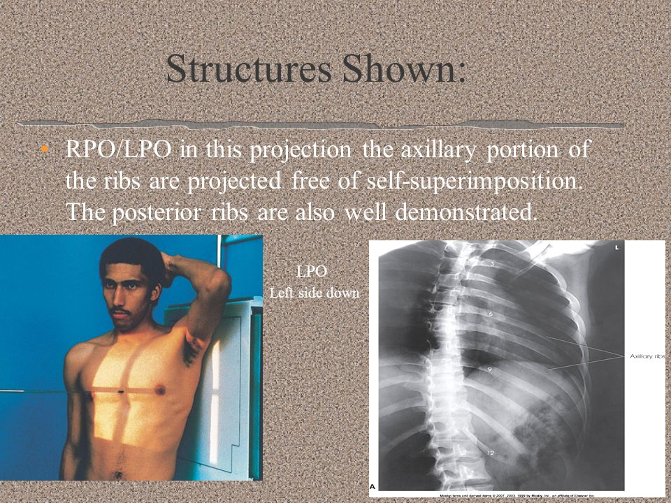 Good Film: Entire manubrium to the tip of the xiphoid should be included Visibility of the sternum through the thorax should be reasonably good Sternum should be projected just free of superimposition from vertebral column Sternum should be projected into the cardiac shadow **Breathing technique: to blur pulmonary markings