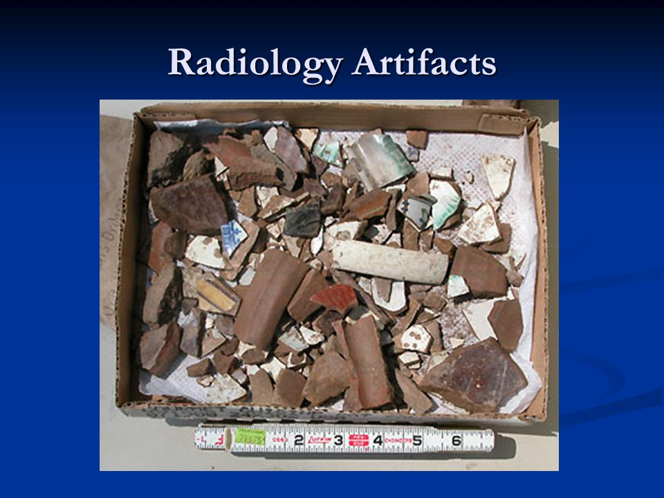 Radiology Artifacts