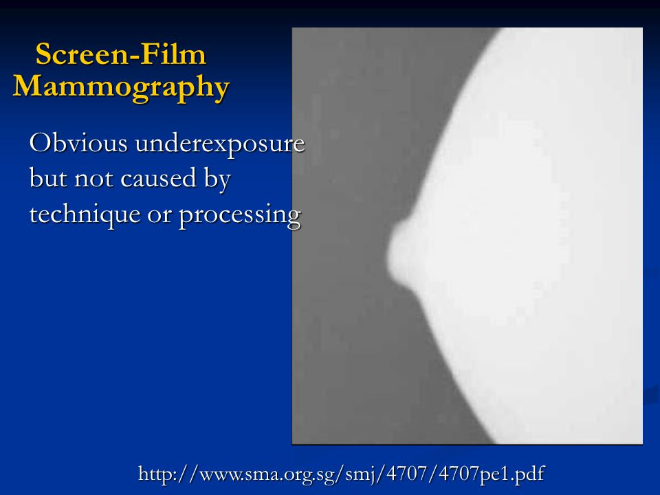 Screen-Film Mammography http://www.sma.org.sg/smj/4707/4707pe1.pdf Obvious underexposure but not caused by technique or processing
