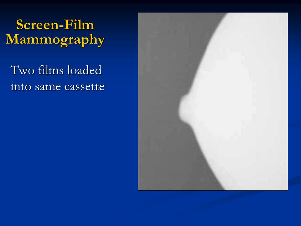 Screen-Film Mammography Two films loaded into same cassette