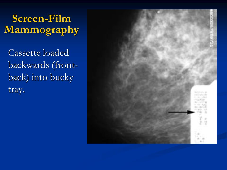 Screen-Film Mammography Cassette loaded backwards (front- back) into bucky tray.
