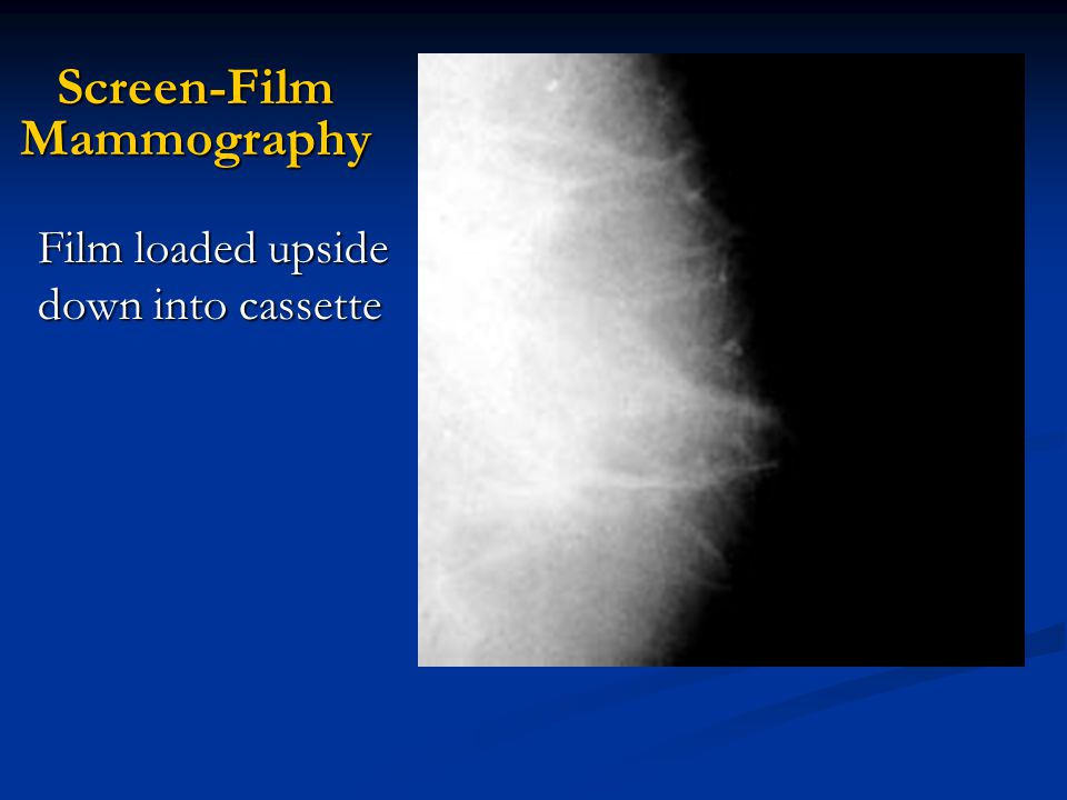 Screen-Film Mammography Film loaded upside down into cassette
