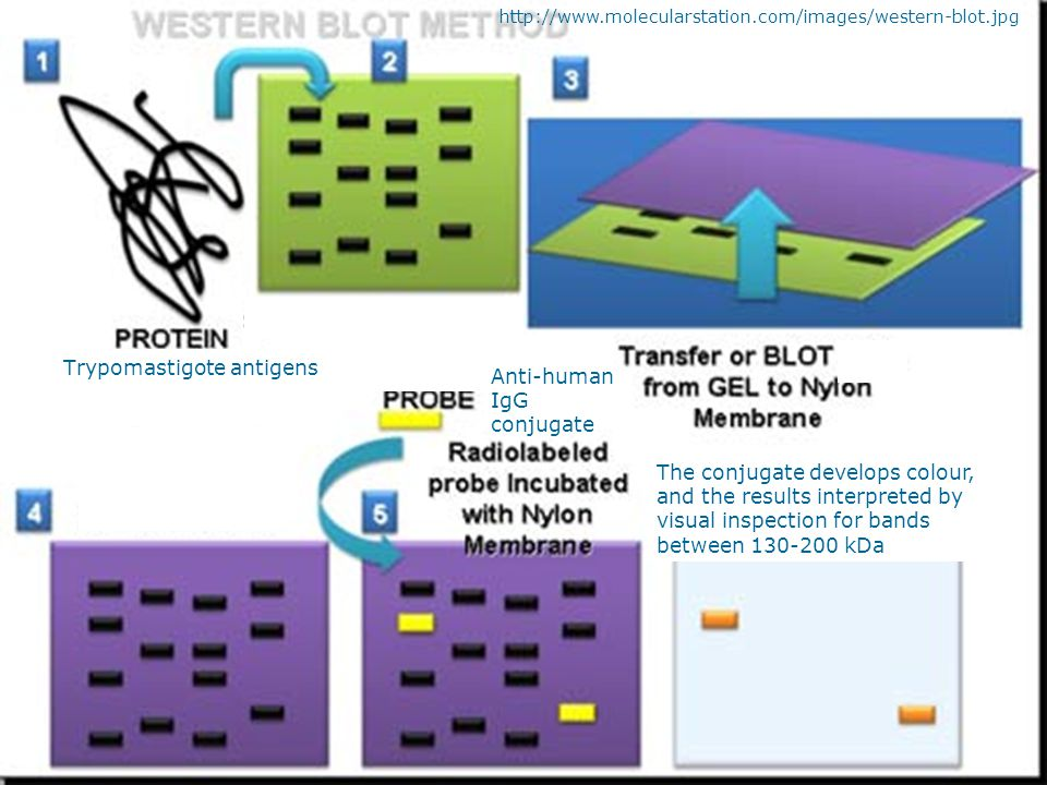 http://www.molecularstation.com/images/western-blot.jpg Trypomastigote antigens Anti-human IgG conjugate The conjugate develops colour, and the result