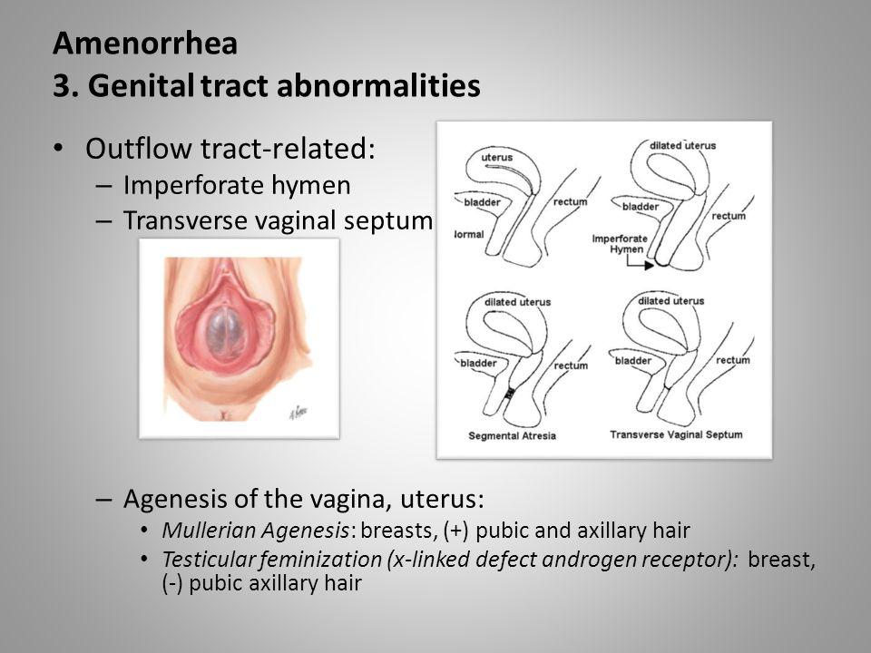 Amenorrhea 3.