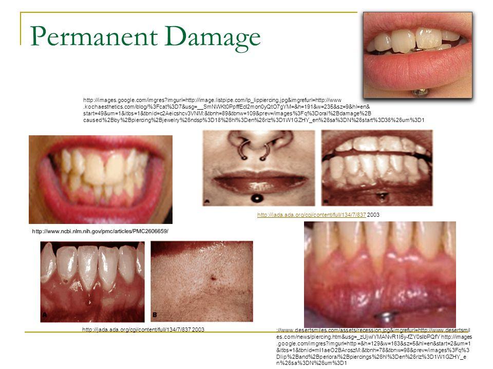 Permanent Damage http://www.ncbi.nlm.nih.gov/pmc/articles/PMC2606659/ http://jada.ada.org/cgi/content/full/134/7/837 2003http://jada.ada.org/cgi/conte