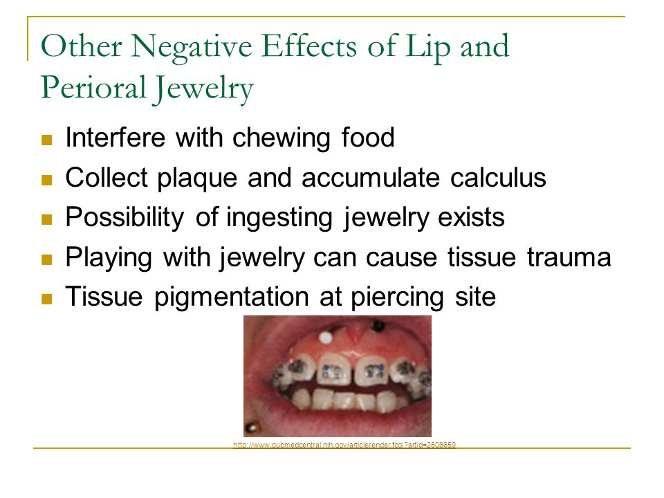 Other Negative Effects of Lip and Perioral Jewelry Interfere with chewing food Collect plaque and accumulate calculus Possibility of ingesting jewelry exists Playing with jewelry can cause tissue trauma Tissue pigmentation at piercing site http://www.pubmedcentral.nih.gov/articlerender.fcgi artid=2606659