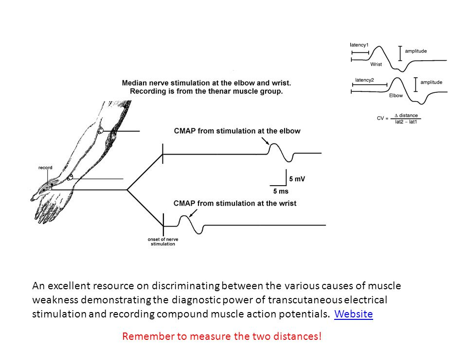An excellent resource on discriminating between the various causes of muscle weakness demonstrating the diagnostic power of transcutaneous electrical stimulation and recording compound muscle action potentials.