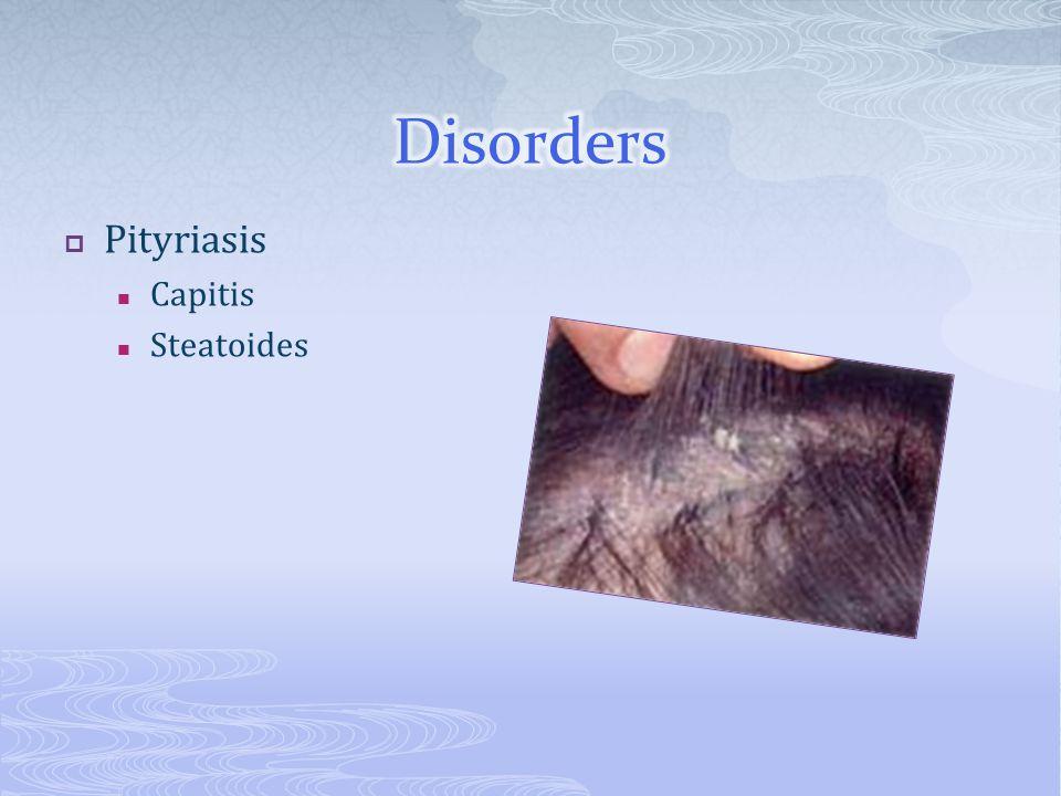  Pityriasis Capitis Steatoides