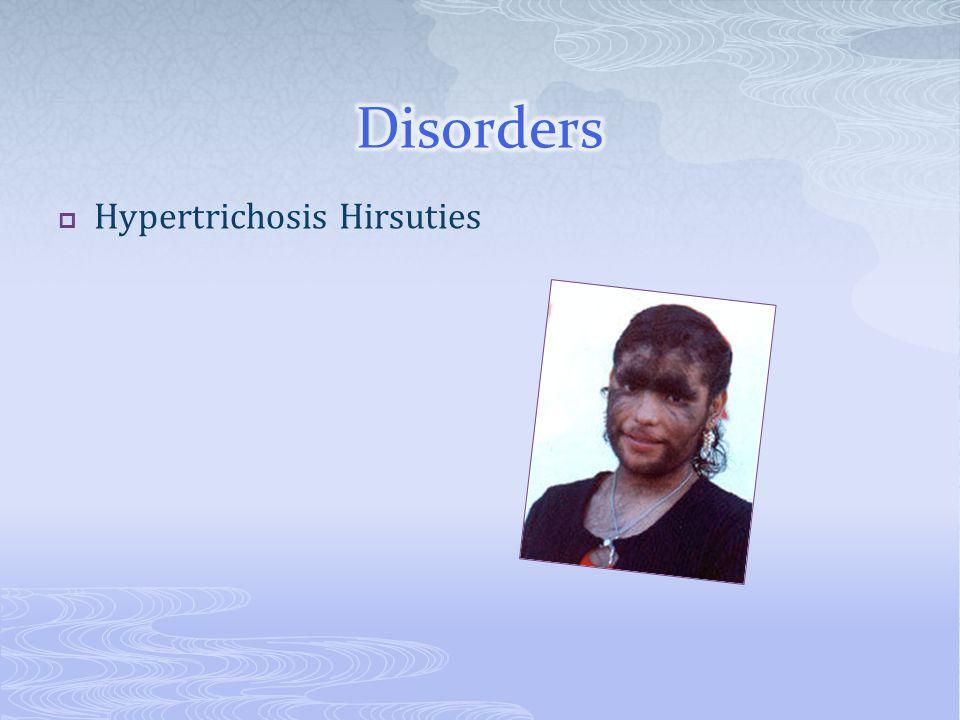  Hypertrichosis Hirsuties