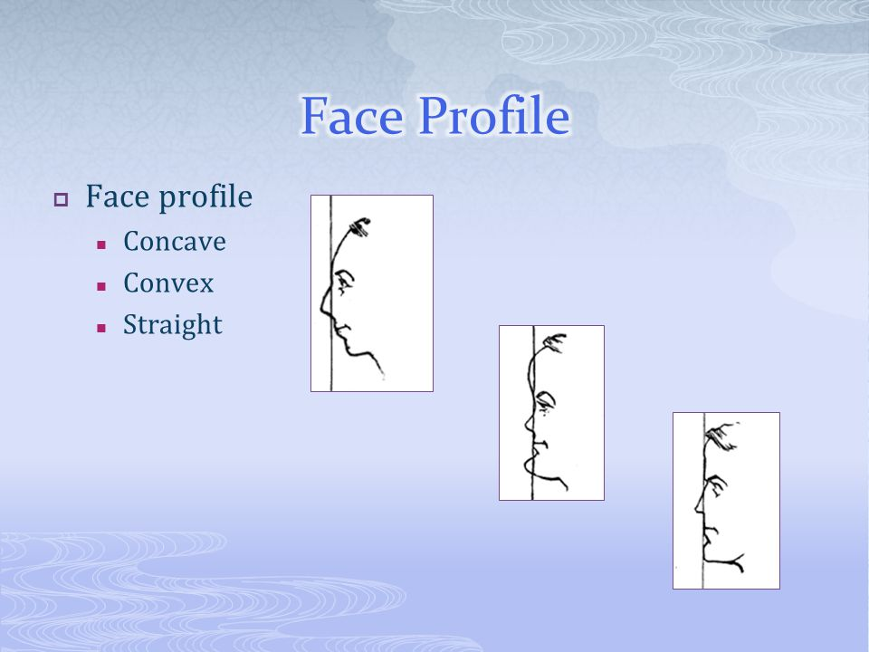  Face profile Concave Convex Straight