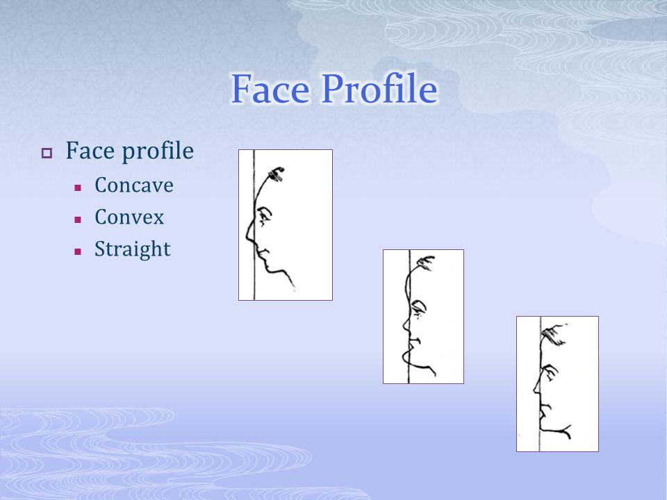 Face profile Concave Convex Straight