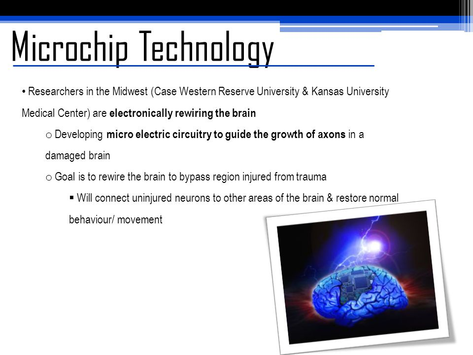 Microchip Technology Researchers in the Midwest (Case Western Reserve University & Kansas University Medical Center) are electronically rewiring the b