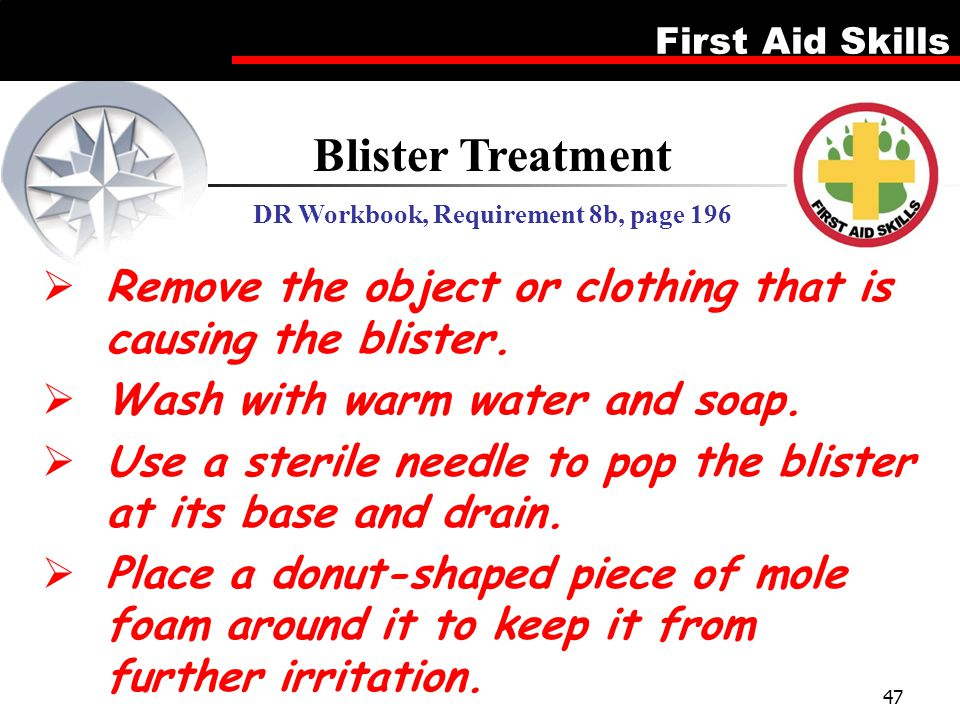 First Aid Skills 47  Remove the object or clothing that is causing the blister.  Wash with warm water and soap.  Use a sterile needle to pop the bl
