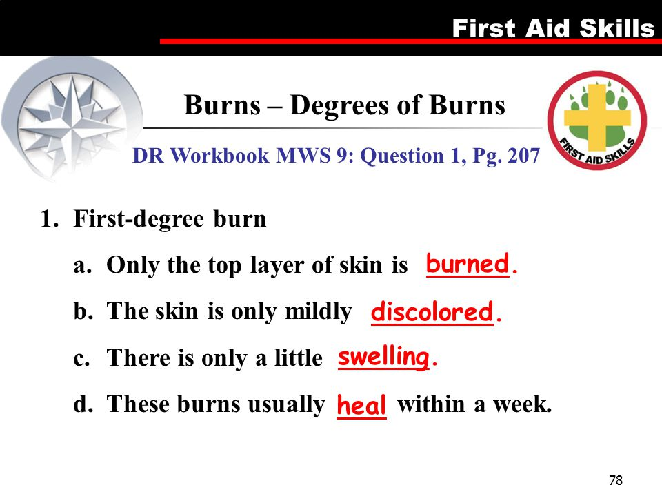 First Aid Skills 78 Burns – Degrees of Burns DR Workbook MWS 9: Question 1, Pg. 207 1.First-degree burn a.Only the top layer of skin is b.The skin is