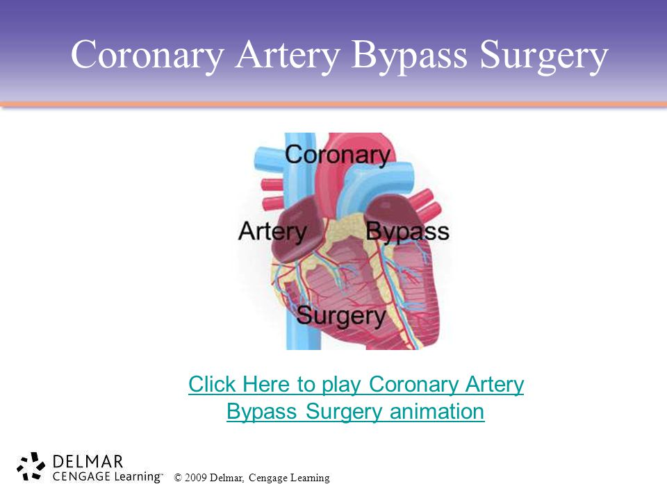 © 2009 Delmar, Cengage Learning Coronary Artery Bypass Surgery Click Here to play Coronary Artery Bypass Surgery animation